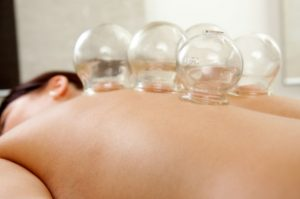 Chinese Cupping Therapy Liverpool